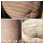 Stretch Mark Treatment Before & After